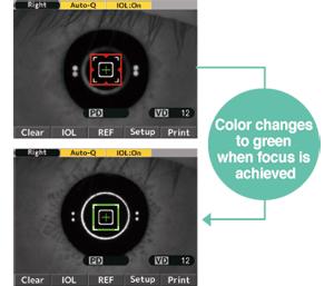 Newly designed IOL Mode [color focus indicator]